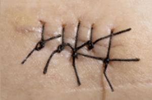 cosmetische chirurgie met transcutane hechting hechting met een lelijk litteken